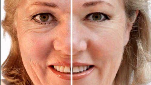 De la crème de beauté des rides du vieillissement des taches de pigment