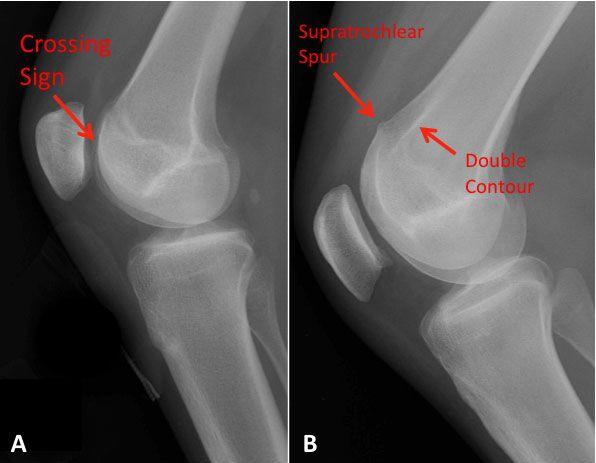 10 Best Osteoarthritis Images On Pinterest Health