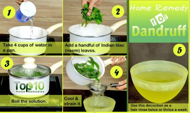 how to remove dandruff -natural dandruff cure