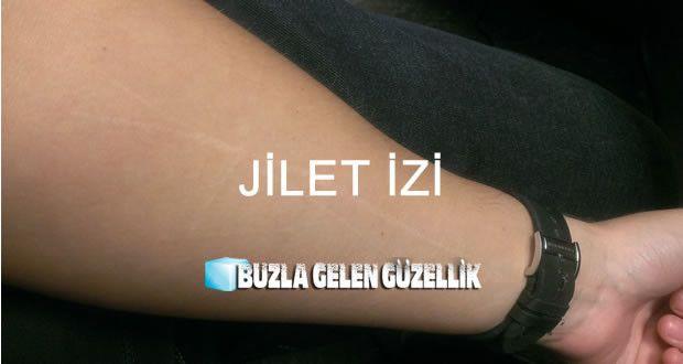www.ciltshop.com/ Cilt, cilt lekeleri, cilt lekeleri tedavisi, cilt izleri, jilet izi, yanık izi, güneş lekesi, vitiligo, saçkıran, ben tedavisi ve tedavi fiyatları bulunuyor.
