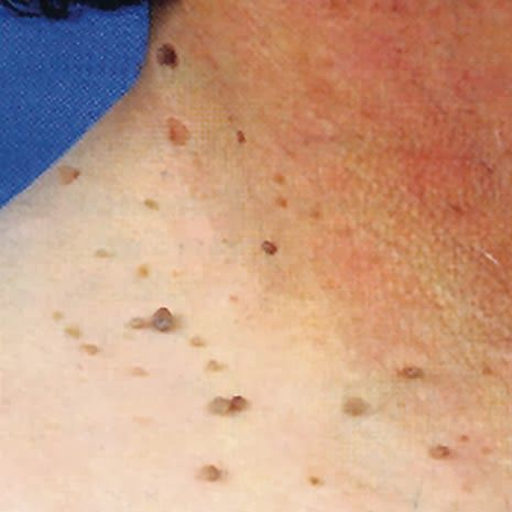 6 Effective Home Remedies for Skin Tag Removal - Eve's Special