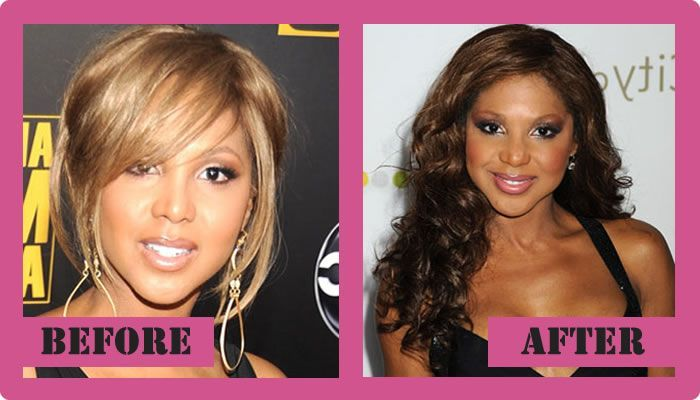 220 Best Plastic Surgery Images On Pinterest Celebrity