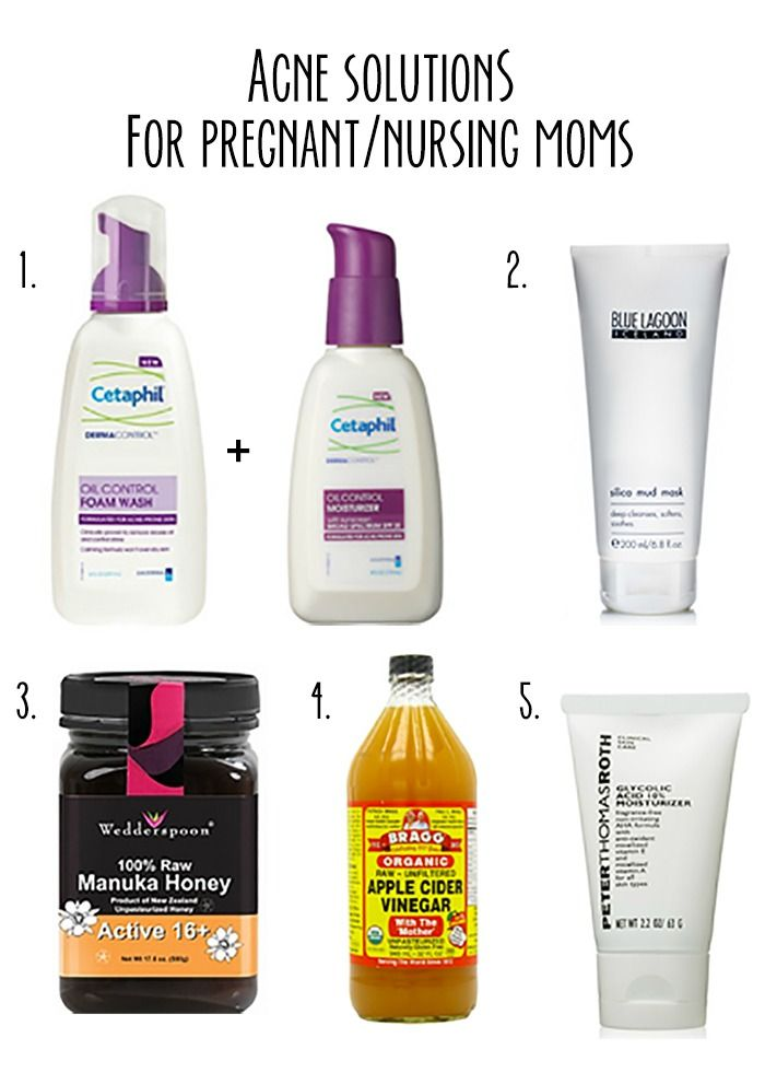 5 acne solutions for pregnant and nursing moms | really risa