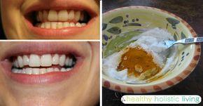 Blanchisseur de dents au curcuma  Ingrédients:      1 càs d'huile de coco     2 gélules de curcuma en poudre (environ ½ à 1 càc)     1 peu d'huile essentielle de menthe poivrée