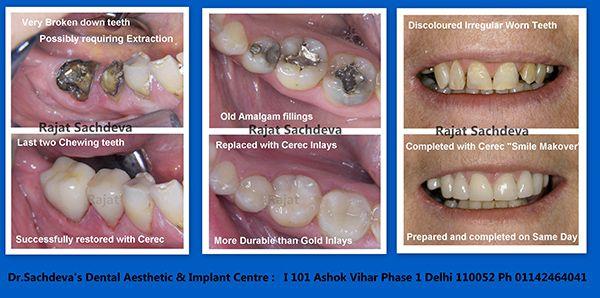 Dental Courses In Delhi,cosmetic dental surgery in delhi,cosmetic dentist in delhi,Dental Implants Clinic in Delhi,cosmetic dentist delhi,dentist in delhi,dental implant courses in delhi,cost of tooth implant in delhi,tooth implant cost in delhi,cosmetic dentistry in delhi,dental clinic in delhi,laser dentistry courses in delhi,cosmetic dental surgery Delhi