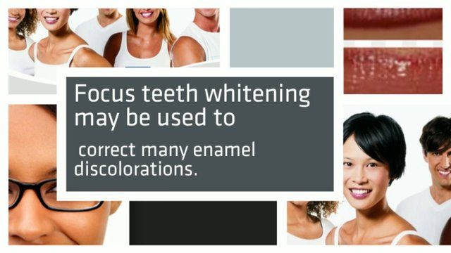Zoom teeth whitening. http://wWw.boyntonlaserdental.com/ Zoom teeth whitening- Laser or Zoom teeth whitening may be used to fix several enam...
