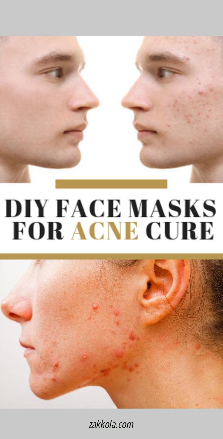Read About Acne Click The Link For More Information Back Acne Treatment Skin Care Pimples Cystic Acne Remedies