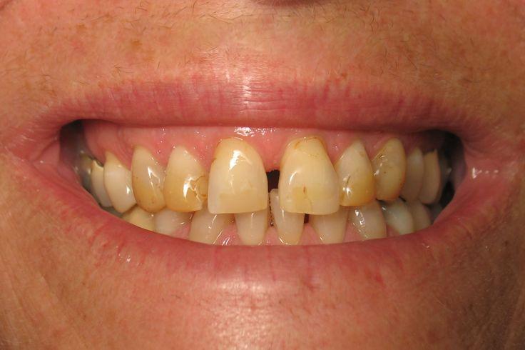 Coffee stained teeth makeup teeth pinterest