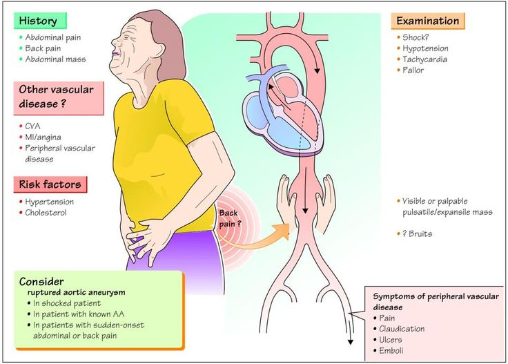 Aortic Aneurysm - Cardiac Nursing School