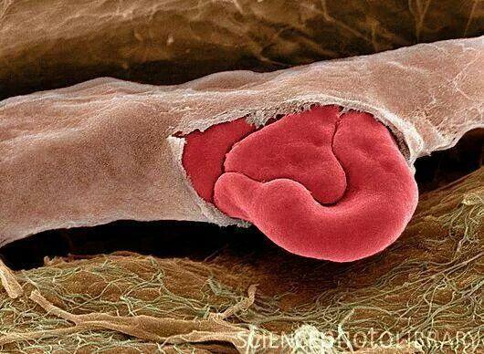 Capillare rotto e globuli rossi