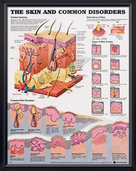 Skin and Common Disorders anatomy poster vividly depicts cross sections of the skin, nail and hair anatomy with 23 illustrations. Dermatology for doctors and nurses.