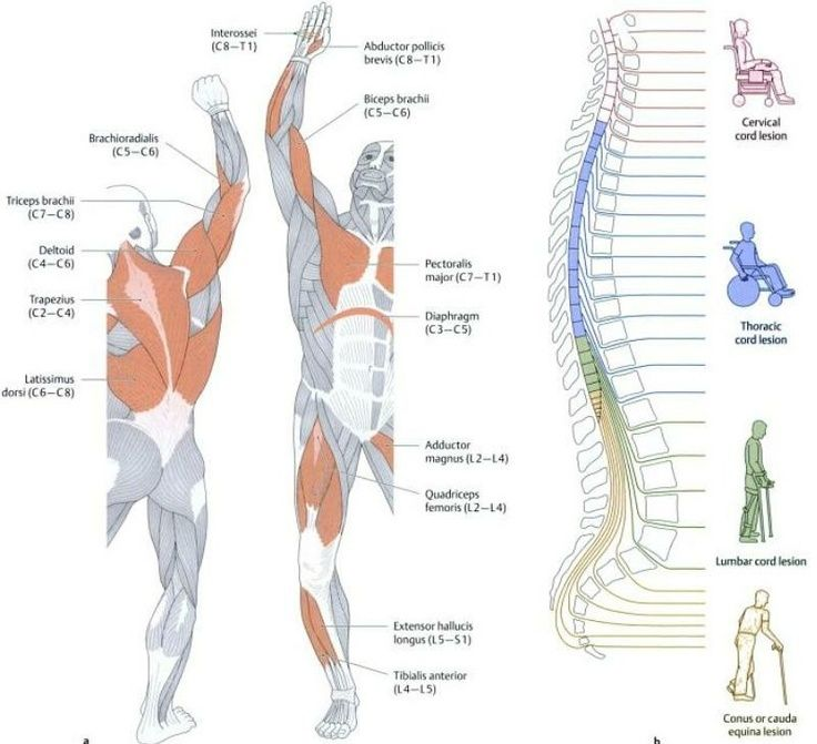 determining the level of spinal cord lesions