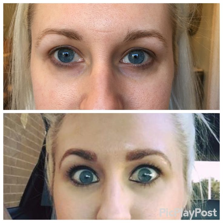 Before and immediately after microblading brows by