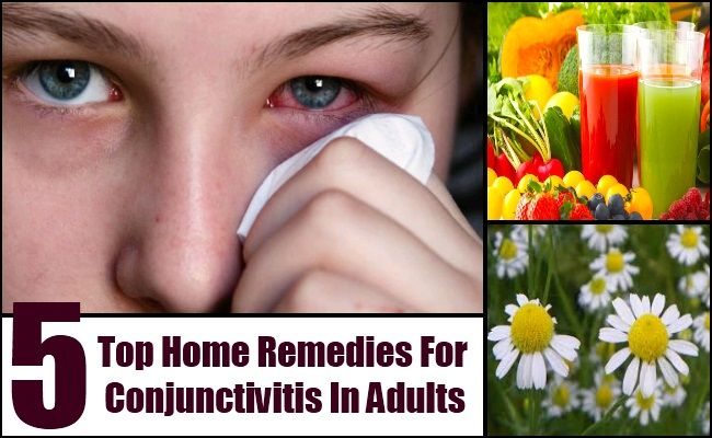 how to treat conjunctivitis in adults