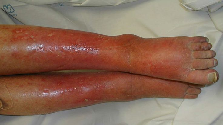 Home Remedies for Cellulitis   Cellulite removal and treatment 2015