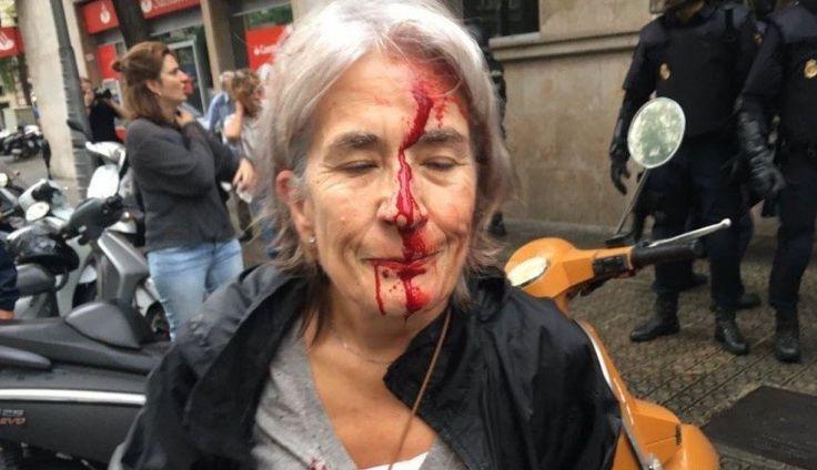 Εικόνες ντροπής στην Καταλονία - Βία, πλαστικές σφαίρες και αιμόφυρτοι ηλικιωμένοι