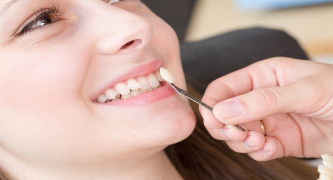 Dental Veneers Houston: What are teeth veneers or dental veneers? (via thehealthsite.com) - http://www.thehealthsite.com/diseases-conditions/what-are-teeth-veneers-or-dental-veneers-b0317/  Learn more about our services - http://cosmeticdentaltexas.com/houston-services/veneers/  #veneers #teeth #dental #health #houston
