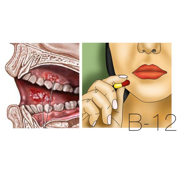 STUDY on B-12 supplementation and mouth sores: Findings and observations suggest a connection between Chiari Malformation and B-vitamin deficiency and/or absorption issues and is for those with mouth sores. This article explains a scientific finding that supplementation with B-12 can help ease the symptoms and appearance of mouth ulcers aka Canker Sores.