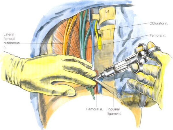 de 25+ bedste idéer om femoral nerve på pinterest, Muscles