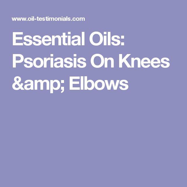 Essential Oils: Psoriasis On Knees & Elbows