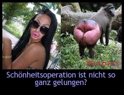 Schönheitsoperation ist nicht so ganz gelungen? - www.MegaPics.ch. Lustige Bilder, witzige Pics, fun Clips, fail Videos.
