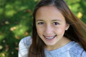 When Your Children Need Braces #best #dental #insurance #for #kids http://dental.remmont.com/when-your-children-need-braces-best-dental-insurance-for-kids-2/  #best dental insurance for kids # When Your Children Need Braces If your kids need braces. then you probably have a few questions about the cost. How expensive are they? Would it be a good idea to invest in dental insurance or a dental discount plan to cover the braces? Are the prices negotiable? Read […]