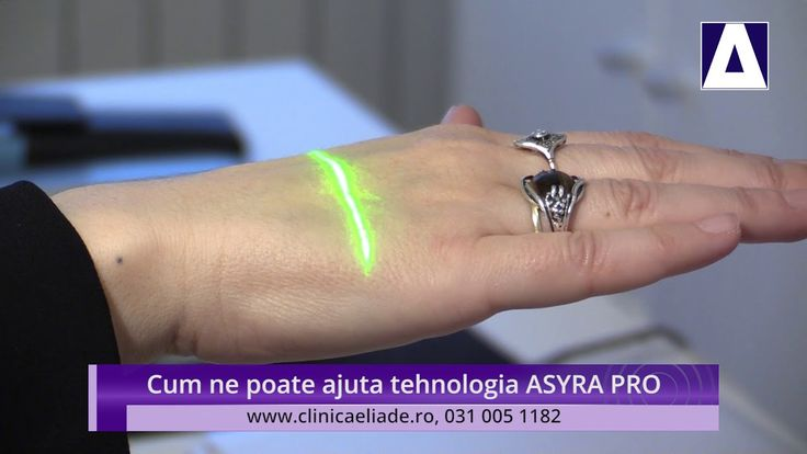 Cum ne poate ajuta tehnologia ASYRA PRO