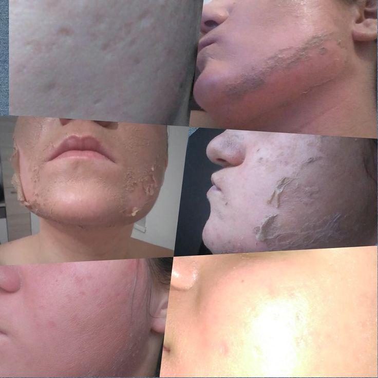 Peeling - ce est une procédure très courante. Son résultat est mis à jour et une peau jeune. Exfoliant acide salicylique  (salicylic acid) se réfère à peelings chimiques, ce qui signifie que dissoudre les cellules mortes de la peau sous l'influence de l'acide. Comme toute autre procédure, il se écaille des indications et contre-indications.