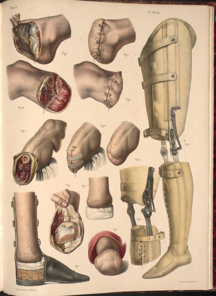 """☞ MD ☆☆☆ Jacob Nicolas Henri    """"Amputation of the foot and leg, examples of prostheses""""    lithography, with hand-colouring    (from """"Traité complet de l'anatomie de l'homme"""" / 1831-1854)"""