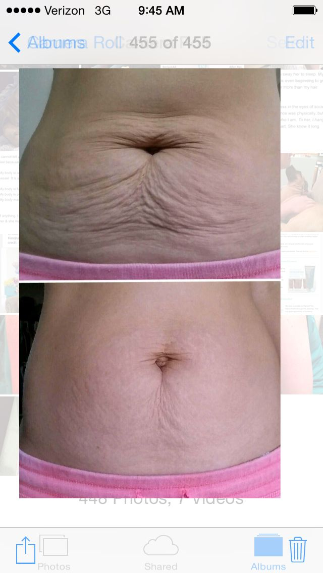Post pardum tummy results!Nerium Firm results after 3 applications ...