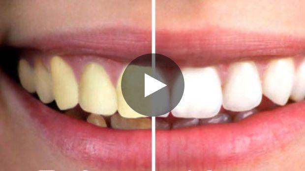 Pour garder des dents blanches, inutile d'aller faire un blanchiment des dents dans un salon