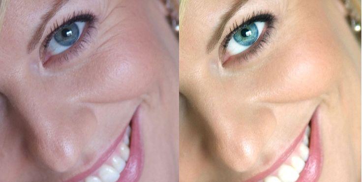 Retoque de piel e imperfecciones, maquillaje de piel, eliminación de marcas, pecas, estrías, líneas de expresión,manchas, ojos rojos...