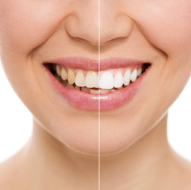 In-office, teeth whitening is one of the simplest, safest and most successful treatments available, and is affordable as well. At Dr. Walter Heidary Family Dentistry, we offer top of the line procedures to improve your smile quickly and effectively. For more information, visit www.desiredsmiles.com
