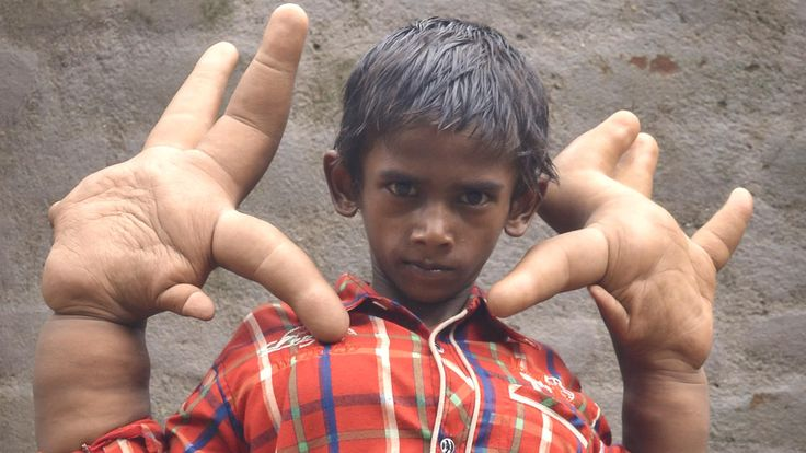Mystery Condition Gives Indian Boy Gigantic Hands | Watch the video - Screen India  OMG