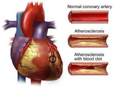 penyakit jantung koroner