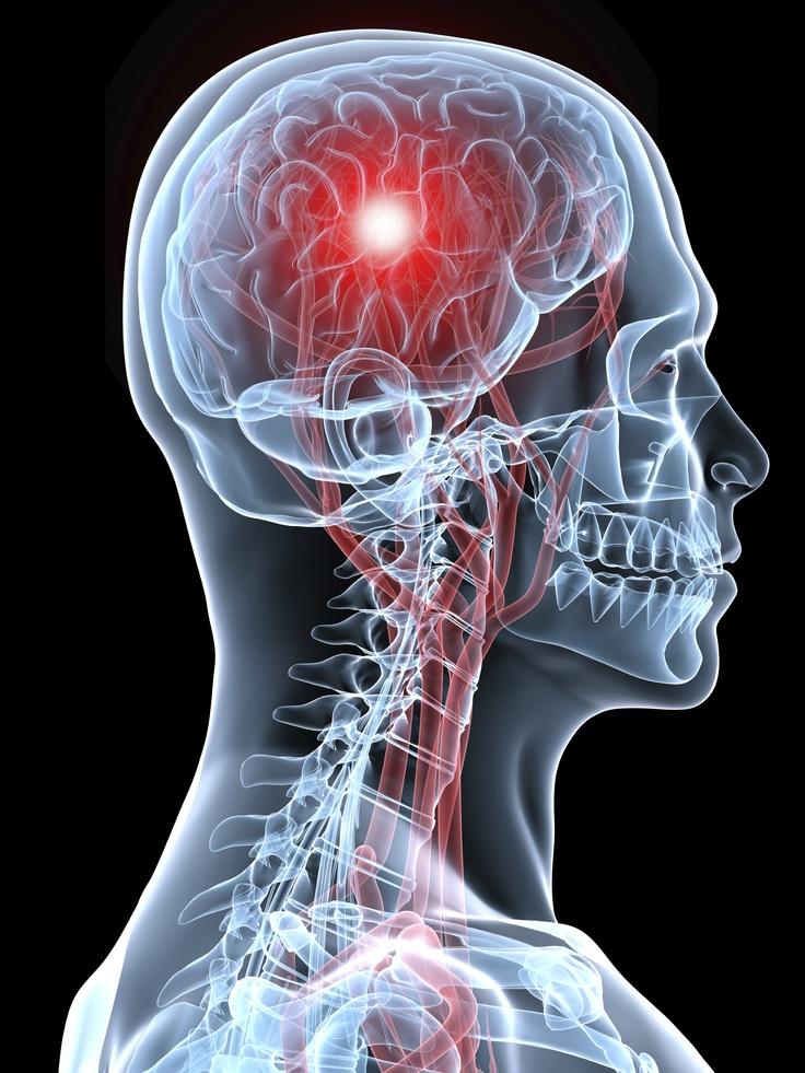 61 besten Strokes Bilder auf Pinterest | Anatomie ...