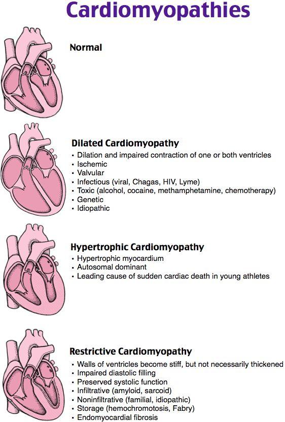 #Nursing #Cardiomyopathies                                                                                                                                                      More
