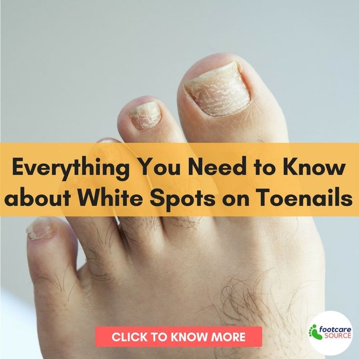 Everything You Need to Know about White Spots on Toenails