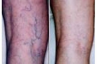 Spider veins are discolored veins similar to, but less prominent than, varicose veins. They can be treated in a variety of ways, including at a doctor's office. However, several folk remedies have a strong reputation for lessening, or curing, the appearance of veins without a costly doctor's visit. Apple cider vinegar has helped many people lessen...