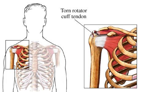 Torn Rotator Cuff Tendon Shoulder Surgery Amp Recovery