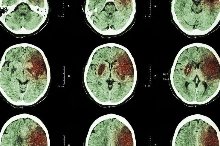 "Stanford researchers studying the effect of stem cells injected directly into the brains of stroke patients said on Thursday that they were ""stunned"" by the success of the treatment in some patients. https://www.washingtonpost.com/news/to-your-health/wp/2016/06/02/stanford-researchers-stunned-by-stem-cell-experiment-that-helped-stroke-patient-walk/"