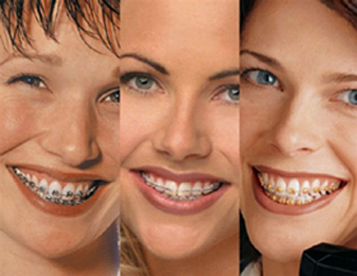 Adult Orthodontics Pictures