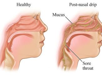 how to stop a cough caused by post nasal drip