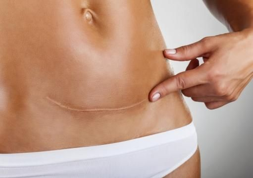 Parto naturale o cesareo? Al vaglio 8 proposte di legge