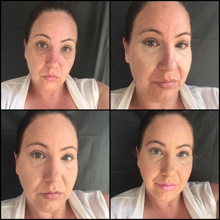 Flawless covering using Younique liquid foundation and concealer.
