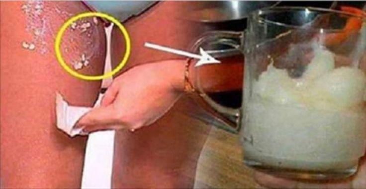 remédio caseiro para eliminar manchas escuras