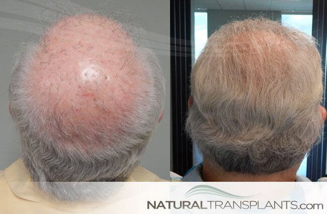 Hair Grafting   Hair Transplant Before and After