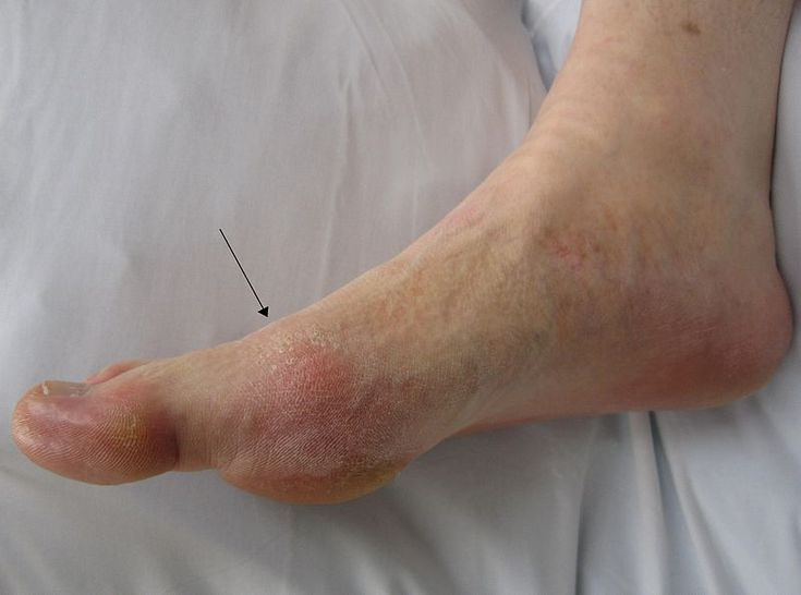 gout in ankle relief lower uric acid foods drugs to treat gouty arthritis