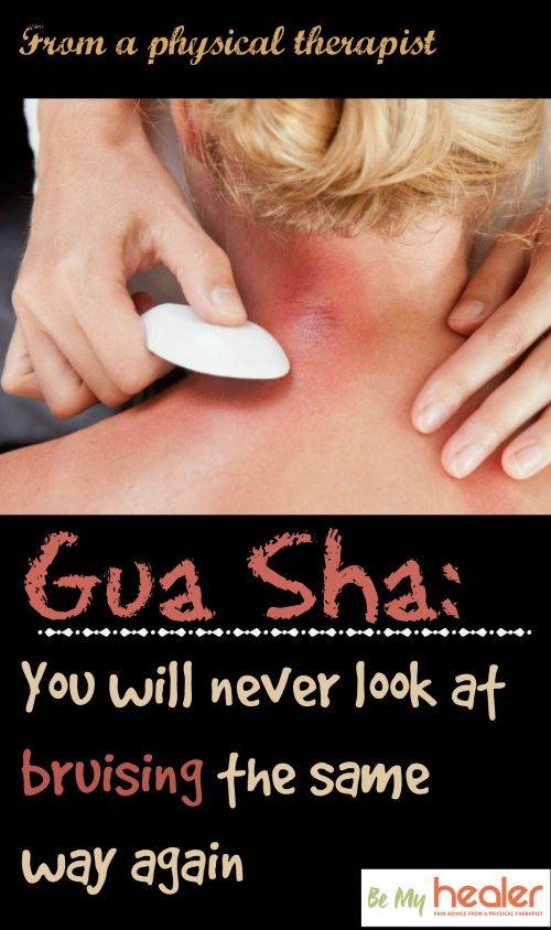 Gua Sha: How to get bruised properly for amazing pain relief results http://bemyhealer.com/gua-sha/