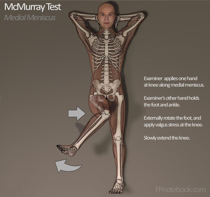 McMurray Test for meniscal injury (positive = pain response)